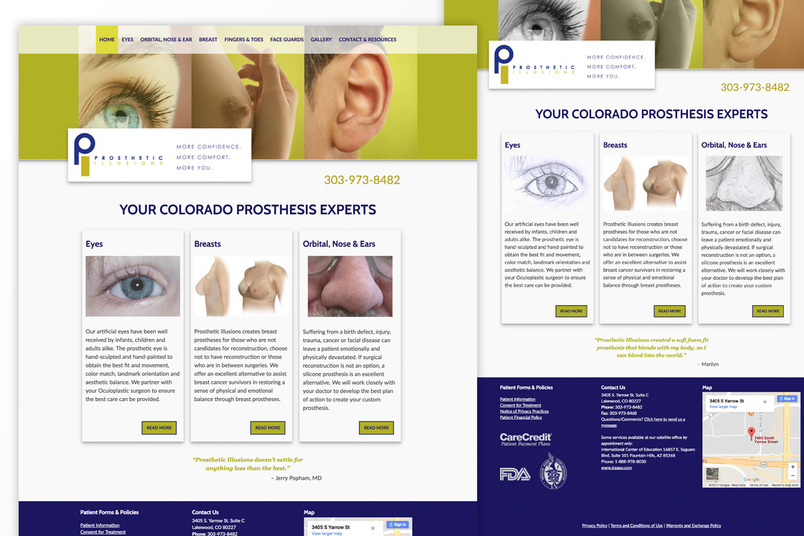 prosthesis marketing